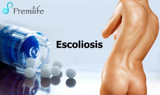 scoliosis-spanish