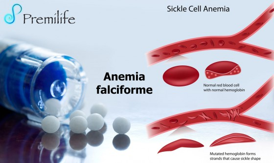 sickle-cell-anemia-spanish