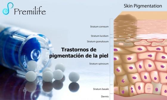 skin-pigmentation-disorders-spanish