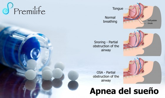 sleep-apnea-spanish