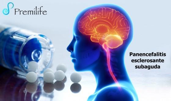 subacute-sclerosing-panencephalitis-spanish
