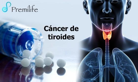 thyroid-cancer-spanish