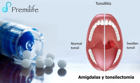 tonsils-spanish