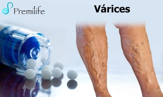 varicose-veins-spanish