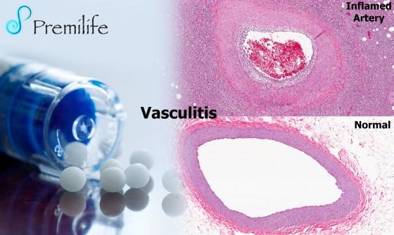 vasculitis-spanish