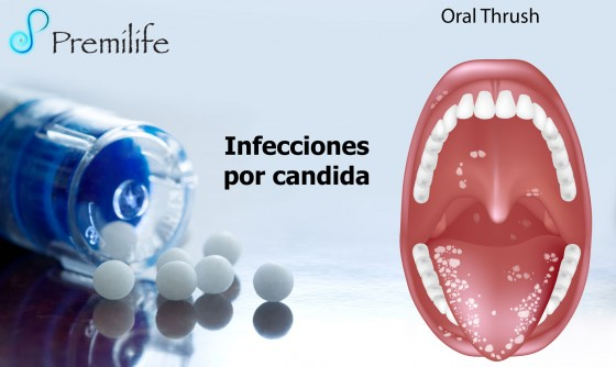 yeast-infections-spanish