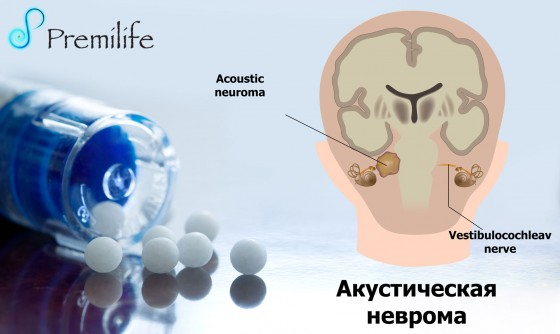 Acoustic-Neuroma-russian