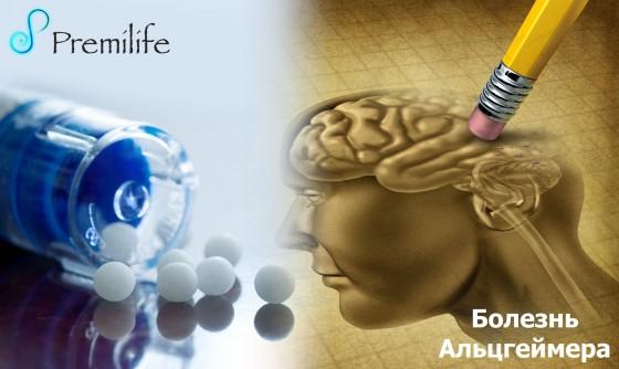 Alzheimer's-Disease-russian