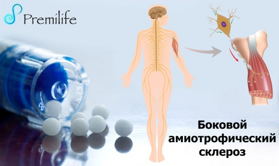 Amyotrophic-Lateral-Sclerosis-russian