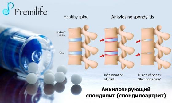 Ankylosing-Spondylitis-russian