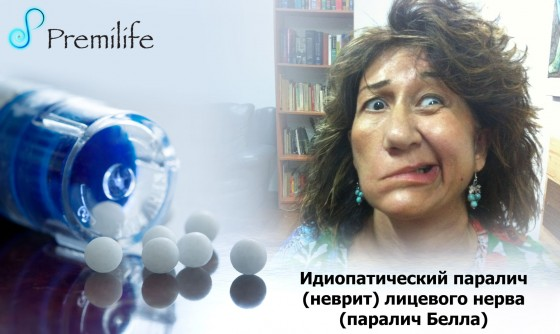 Bell's-palsy-russian