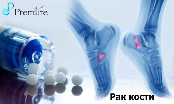 Bone-Cancer-russian