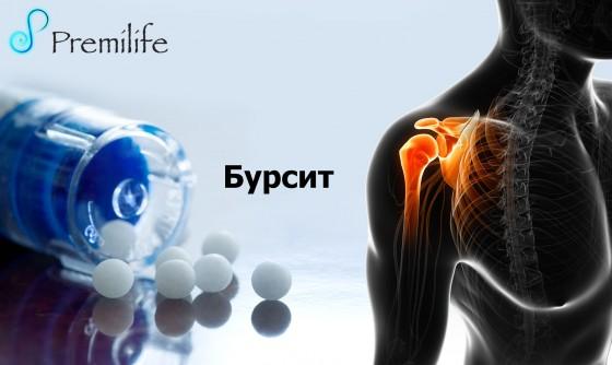 Bursitis-russian