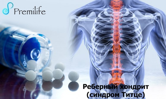 Costochondritis-russian