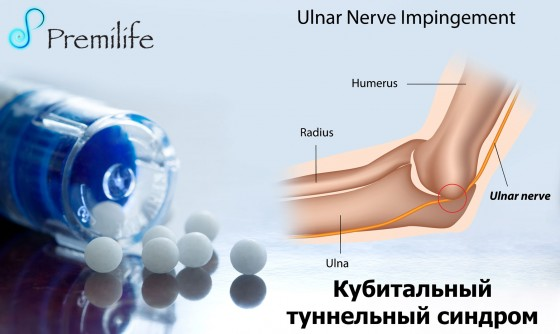 Cubital-Tunnel-Syndrome-russian