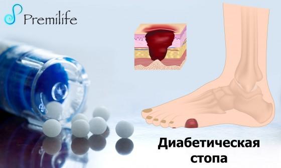 Diabetic-Foot-russian