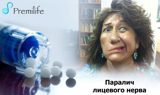 Facial-paralysis-russian