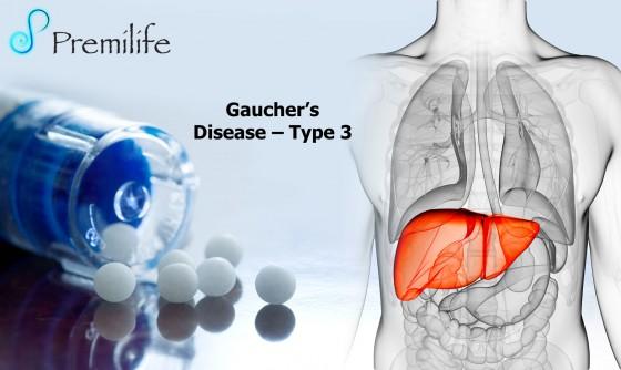 Gauchers-Disease-Type-3