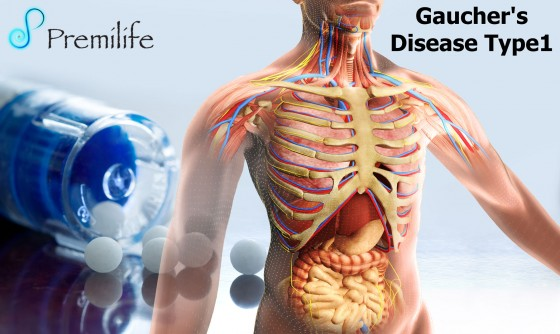 Gaucher's-Disease-Type1