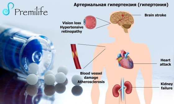 Hypertension-russian