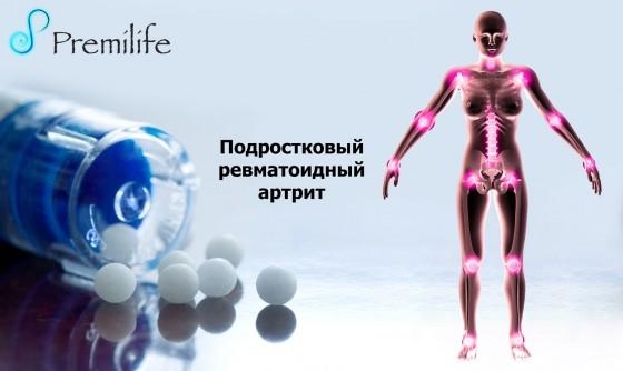 Juvenile-Rheumatoid-Arthritis-russian
