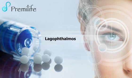 Lagophthalmos