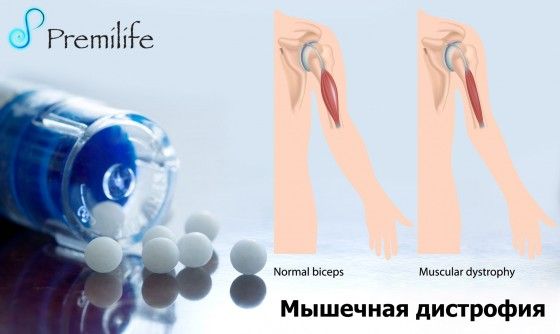 Muscular-Dystrophy-russian