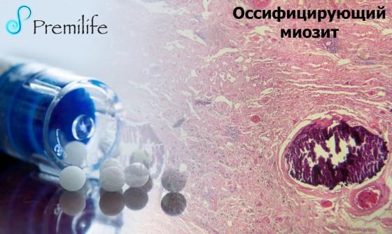 Myositis-ossificans-russian