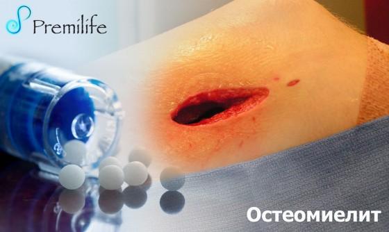 Osteomyelitis-russian
