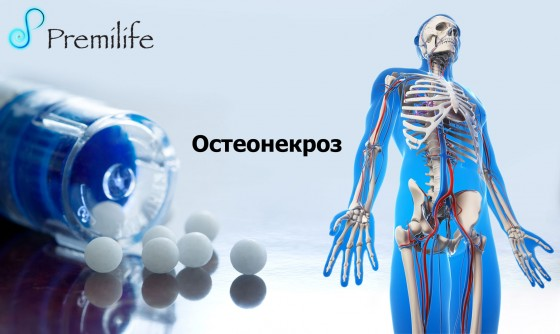 Osteonecrosis-russian