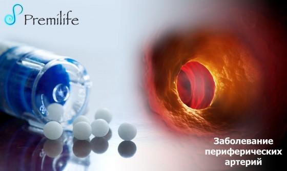 Peripheral-arterial-disease-russian