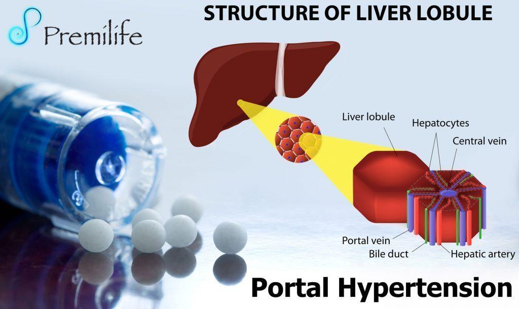 Portal Hypertension - Premilife - Homeopathic Remedies