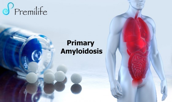 Primary-Amyloidosis