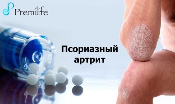 Psoriatic-Arthritis-russian