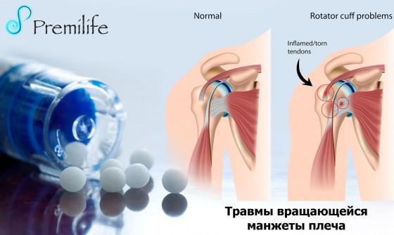 Rotator-Cuff-Injuries-russian