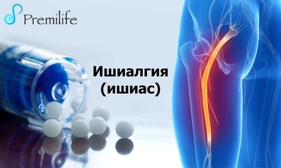 Sciatica-russian