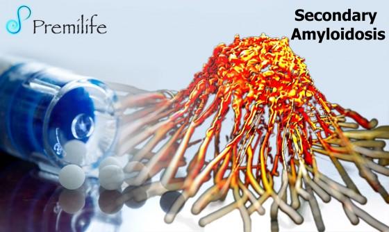 Secondary-Amyloidosis