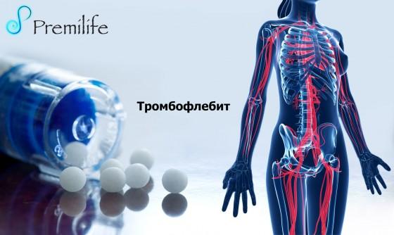 Thrombophlebitis-russian