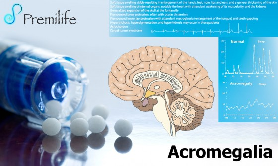 acromegaly-spanish