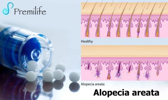 alopecia-areata-spanish