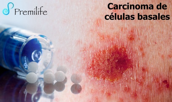 basal-cell-carcinoma-spanish