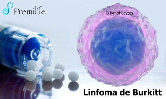 burkitt's-lymphoma-spanish