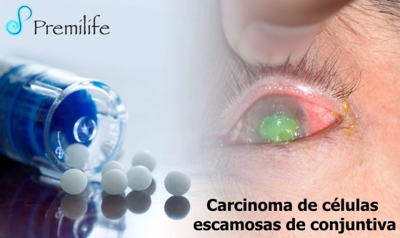 conjunctival-squamous-cell-carcinoma-spanish