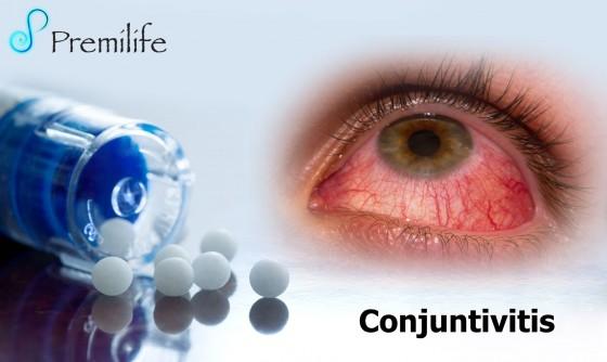 conjunctivitis-spanish
