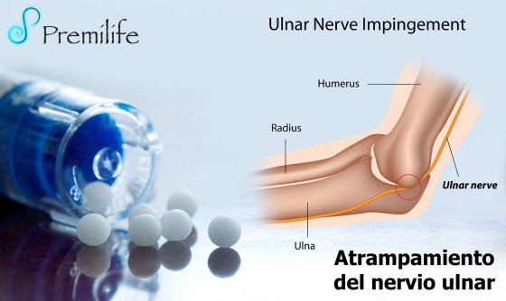 cubital-tunnel-syndrome-spanish