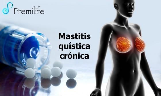 fibrocystic-breast-disease-spanish