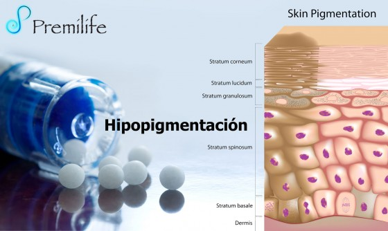hypopigmentation-spanish