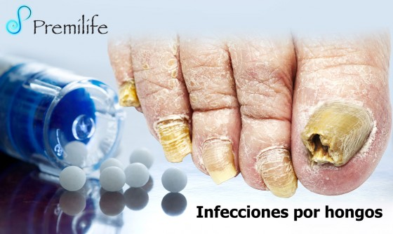infections-fungal-spanish