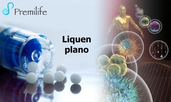 lichen-planus-spanish
