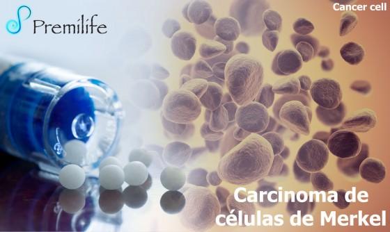 merkel-cell-cancer-spanish
